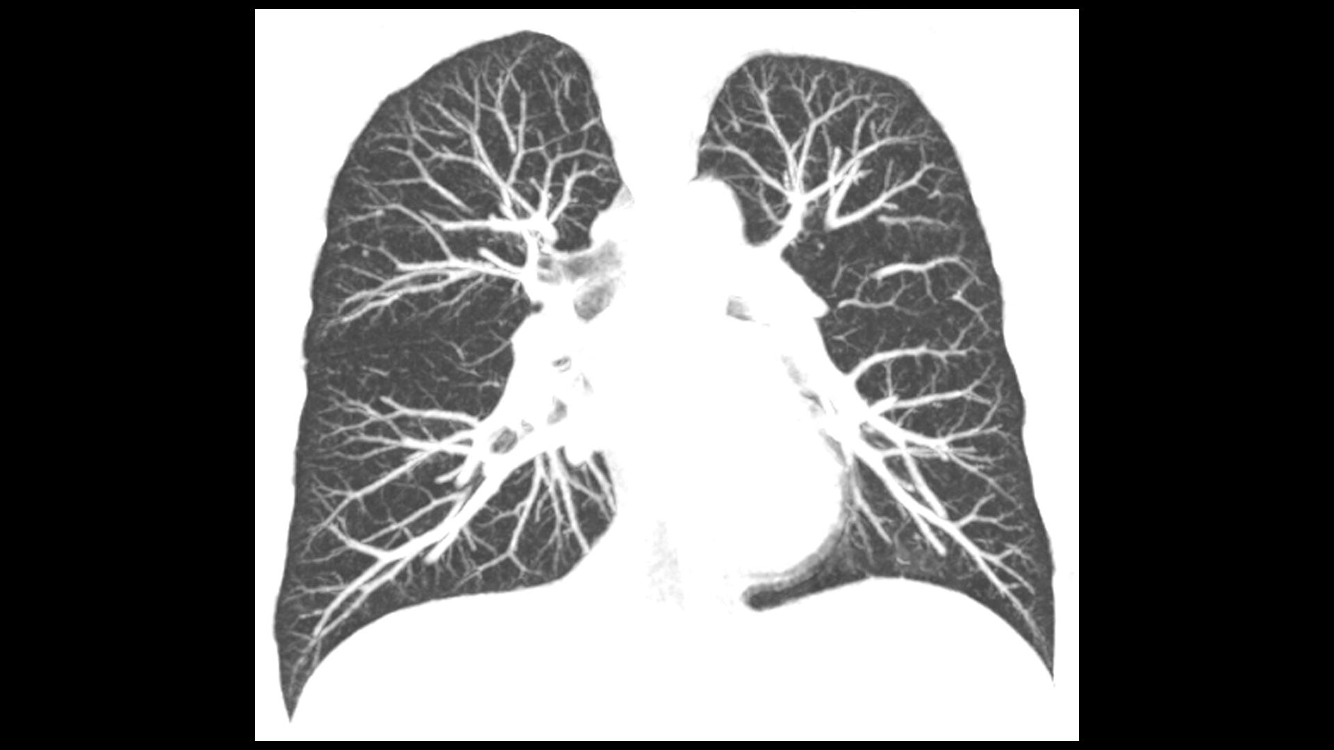 An ultra-low-dose native CT examination was performed to follow up a solitary pulmonary micronodule, 1 mm in diameter, in the right upper lobe of a 38-year-old male patient.