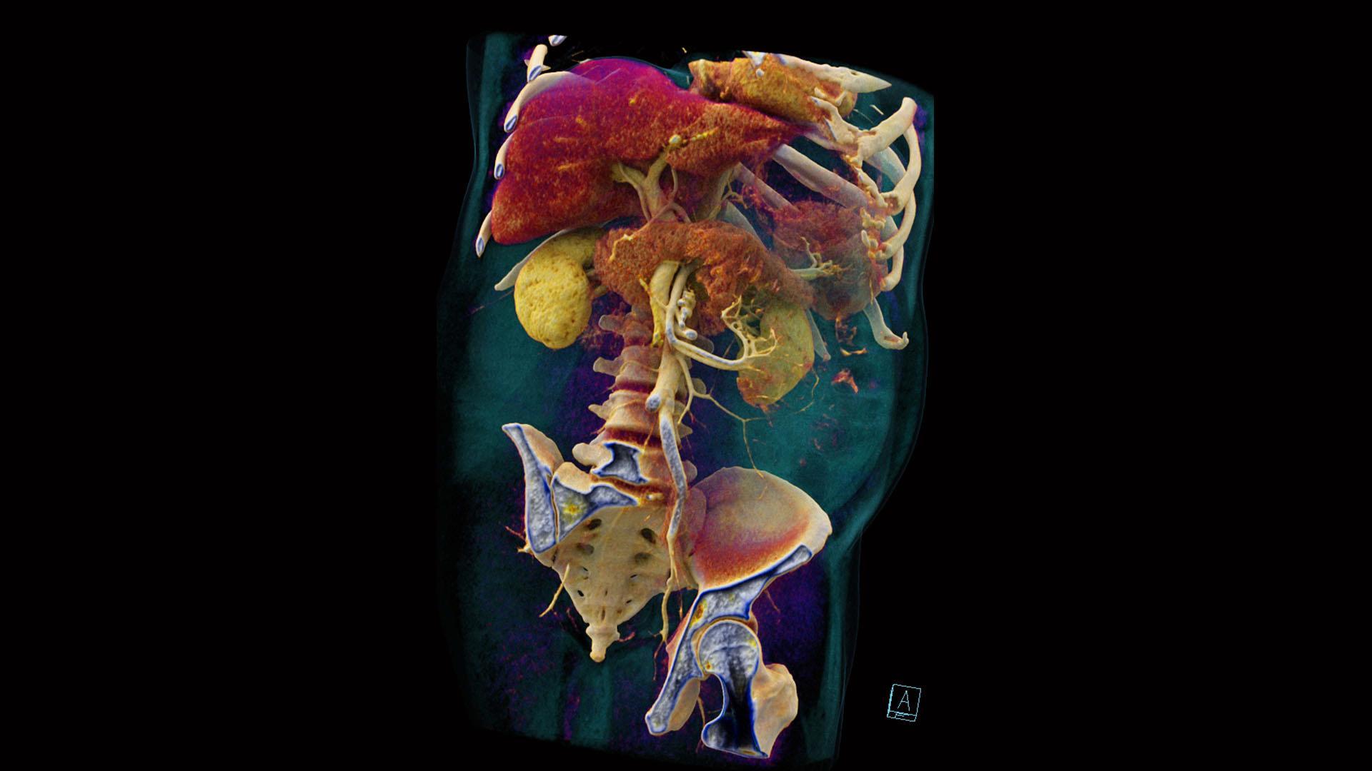 A cVRT image shows an annular pancreas in 3D.