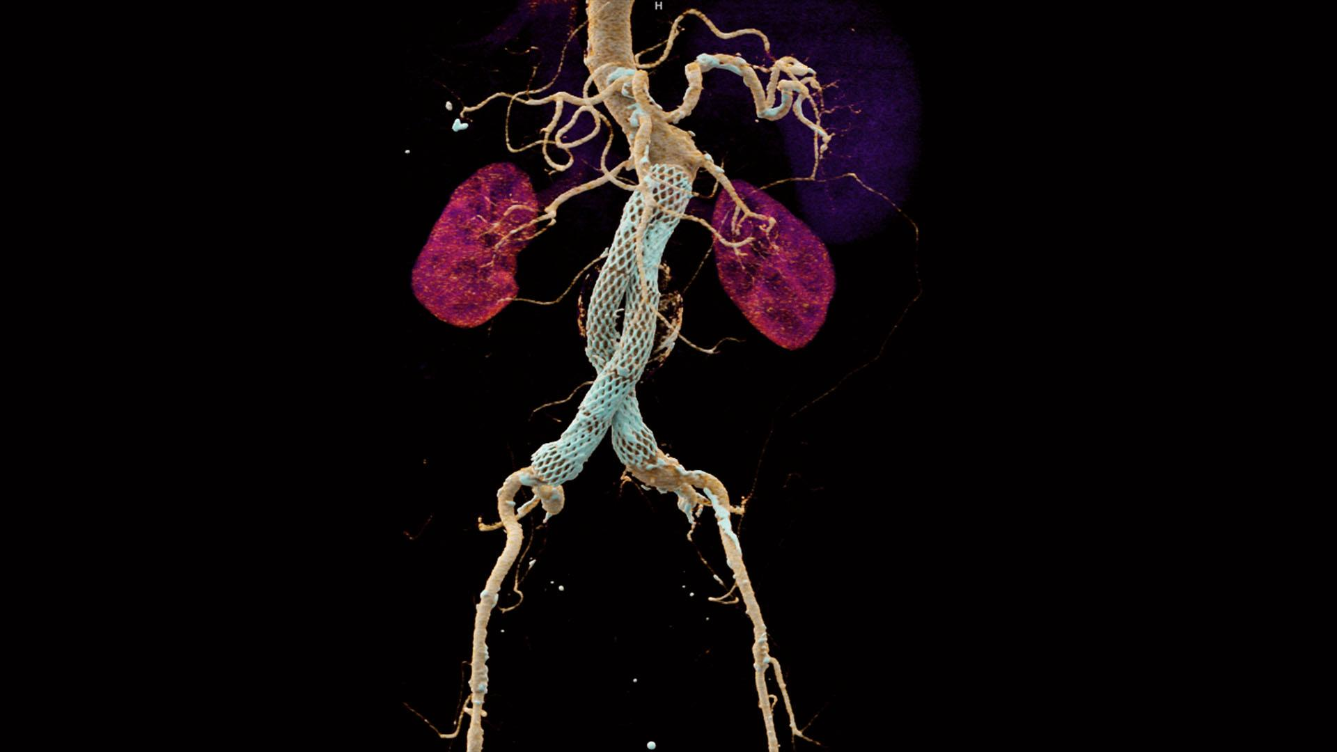 A CT angiography (CTA) was performed for follow-up evaluation on a 70-year-old male patient after stent grafts placement and a known history of peripheral vascular disease.