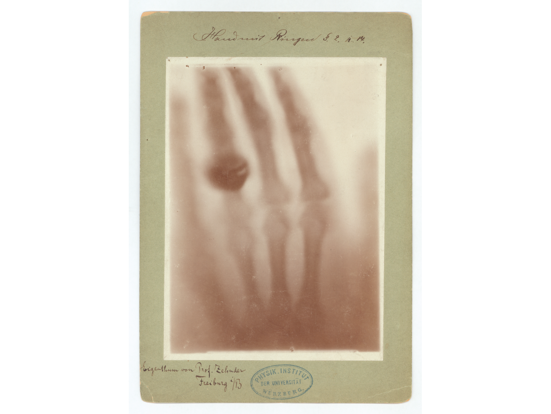 125 ans de rayons X