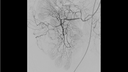 DSA, excellent visualization of hepatic vessels