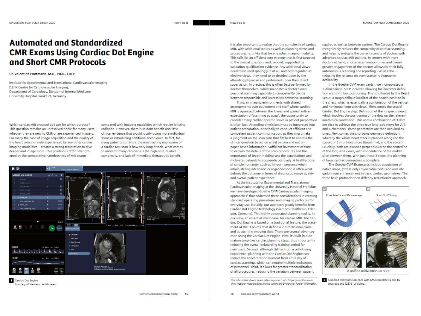 Automated and Standardized CMR Exams Using Cardiac Dot Engine and Short CMR Protocols