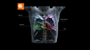World's first CT simulator that generates contours for lung cancer patients.