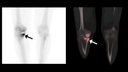 Increased tracer uptake in tibial component of medial right-knee hemi-arthroplasty