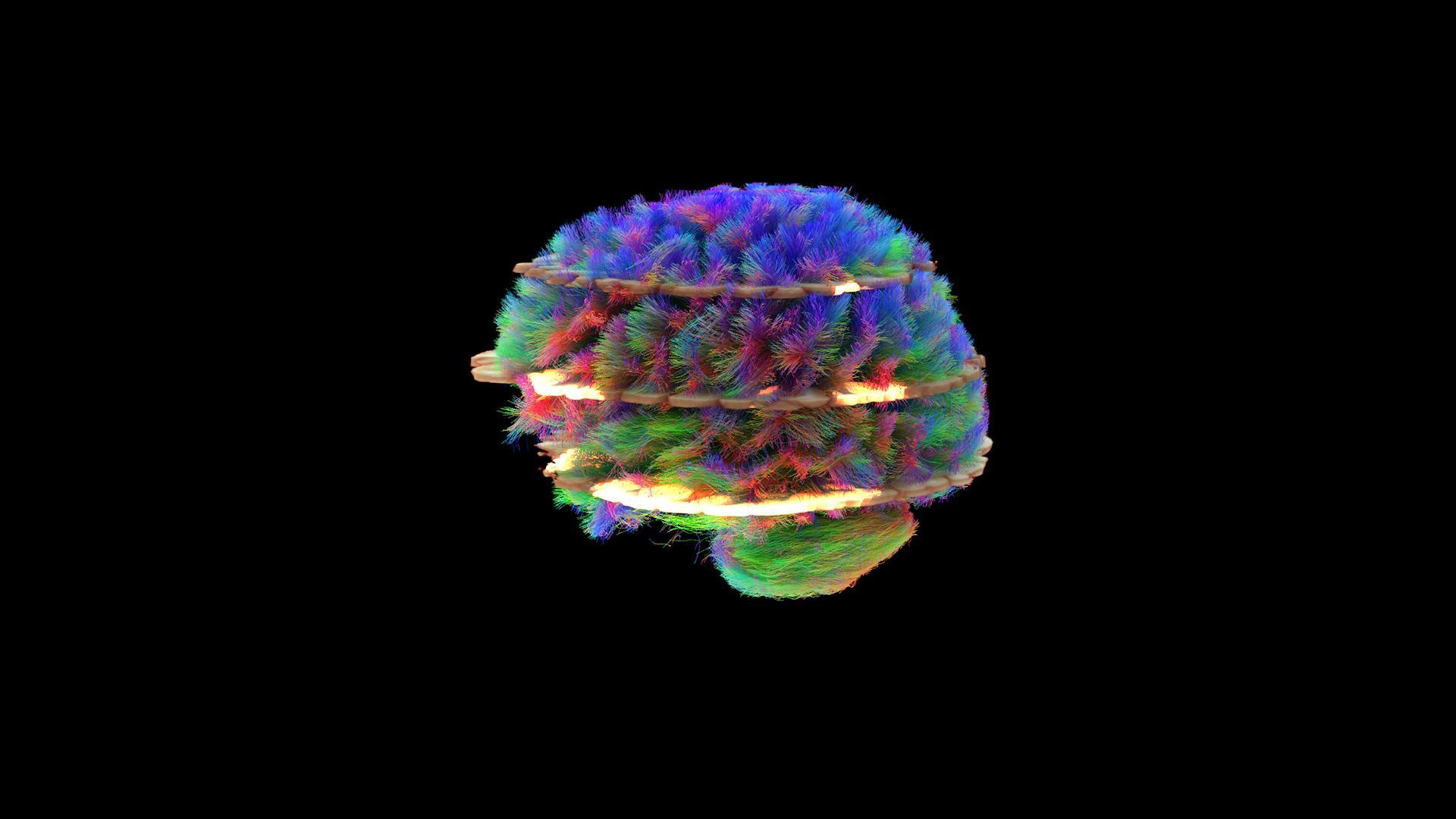 GUMed i Siemens Healthineers podsumowały pilotaż projektu poświęconego udarom mózgu