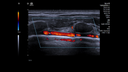 Figure 2: Anatomical basics of the chest wall structures and the internal thoracic artery using the color Doppler examination.