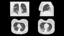 SARS-CoV-2: Tin Filter HR CT, 57-year-old female