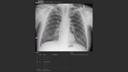 AI-Rad Companion Chest X-ray