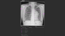 PA chest X-ray of a patient showing an AI-Rad Companion Chest X-ray finding of a lung lesion in the left lung and the pneumothorax in the right lung.