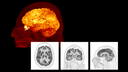 Clinical Images: Neurology