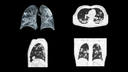 SARS-CoV-2: Non-CME thorax HR CT male patient