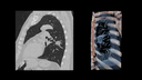 kV selection example lung imaging