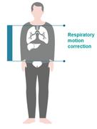 Respiratory-Motion-Correction