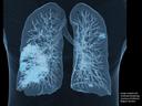 Atualização no Diagnóstico por Imagem em TC para COVID-19