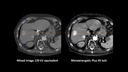Twin Beam Dual Energy example thorax CT scan