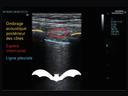 Fiche d'information sur l'échographie pulmonaire