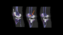 SPECT/CT delineation of patellar and femorotibial overload after knee arthroplasty