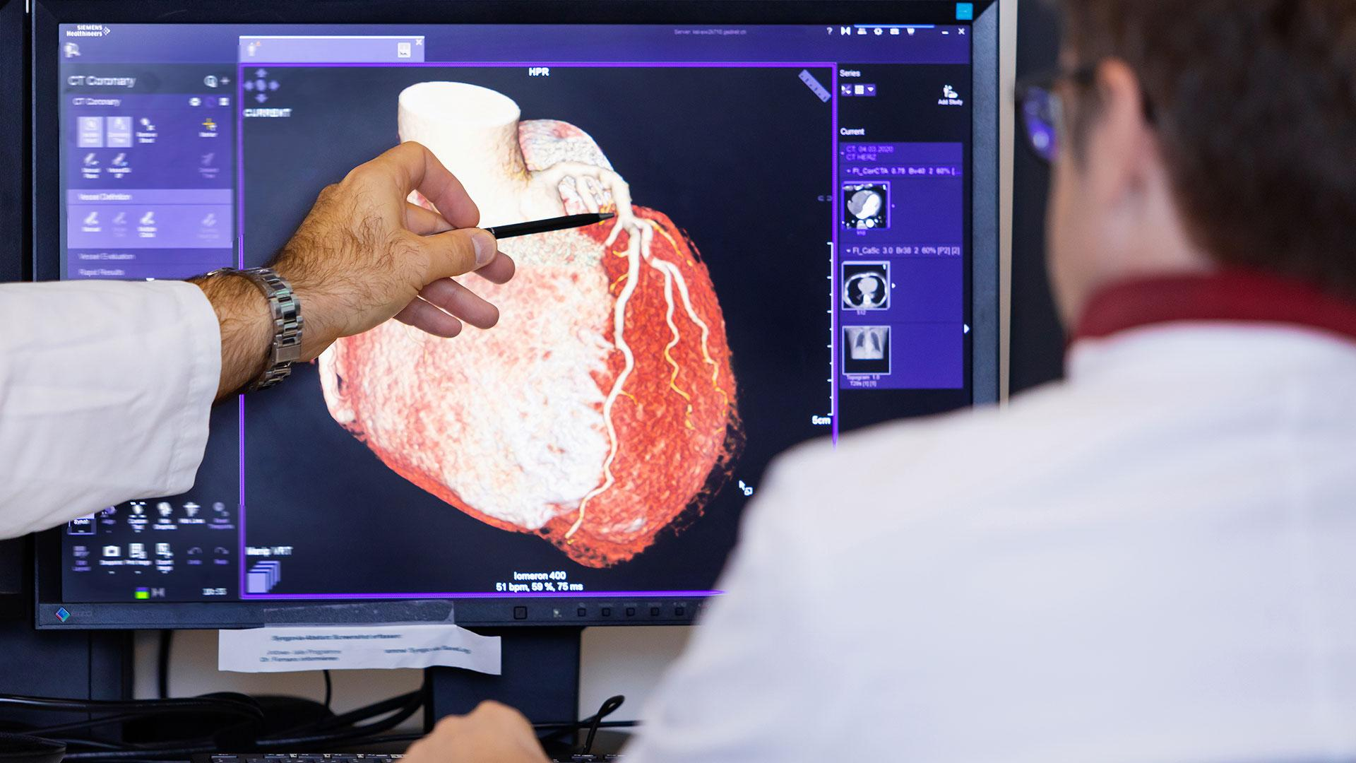 Jürgen Fornaro, MD looks at a heart CT scan on a screen.