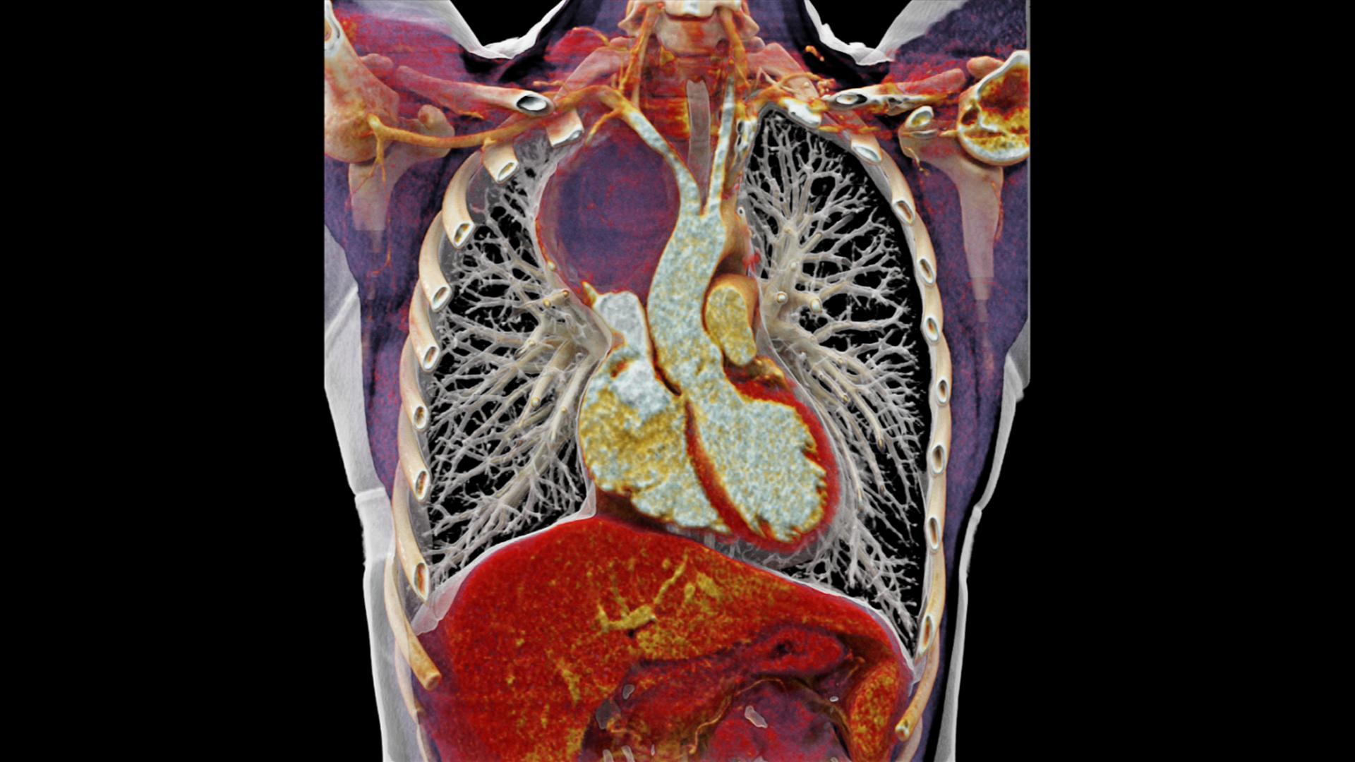 A coronal cinematic rendering image shows the craniocaudal extent of the paratracheal mass lateral to the aorta.