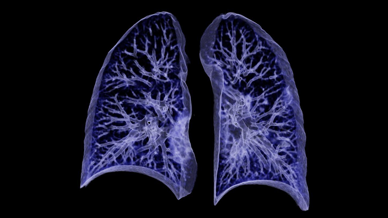 COVID-19 pneumonia – Chest X-ray or CT?