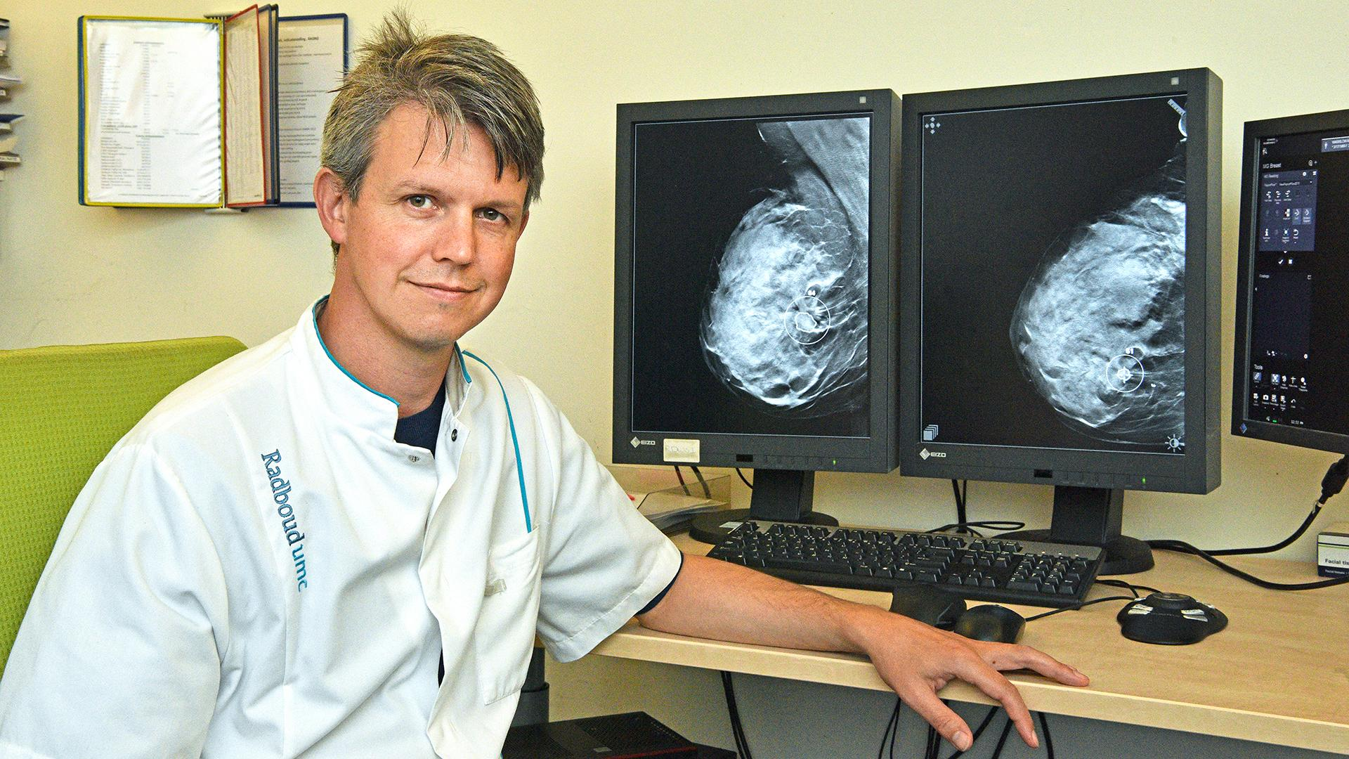Radiologist Ritse Mann, MD, PhD, head of breast imaging at Radboud University Medical Center, Nijmegen, the Netherlands.
