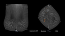 Insight CEM Contrast Enhanced Mammography