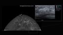 fibroglandular tissues
