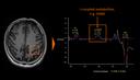Detecção e quantificação relativa de metabólitos acoplados a J