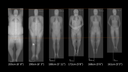 Siemens Healthineers MI Quadra scans