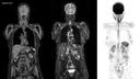 Ganzkörper-MRT in weniger als 30 Minuten