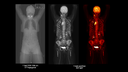 Falldetails: Diffuses grosse B-Zellen-Lymphom
