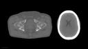 Pelvis Brain
