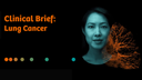 AI Pathway Companion Lung Cancer Clinical Brief