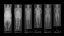 biograph vision quadra scans