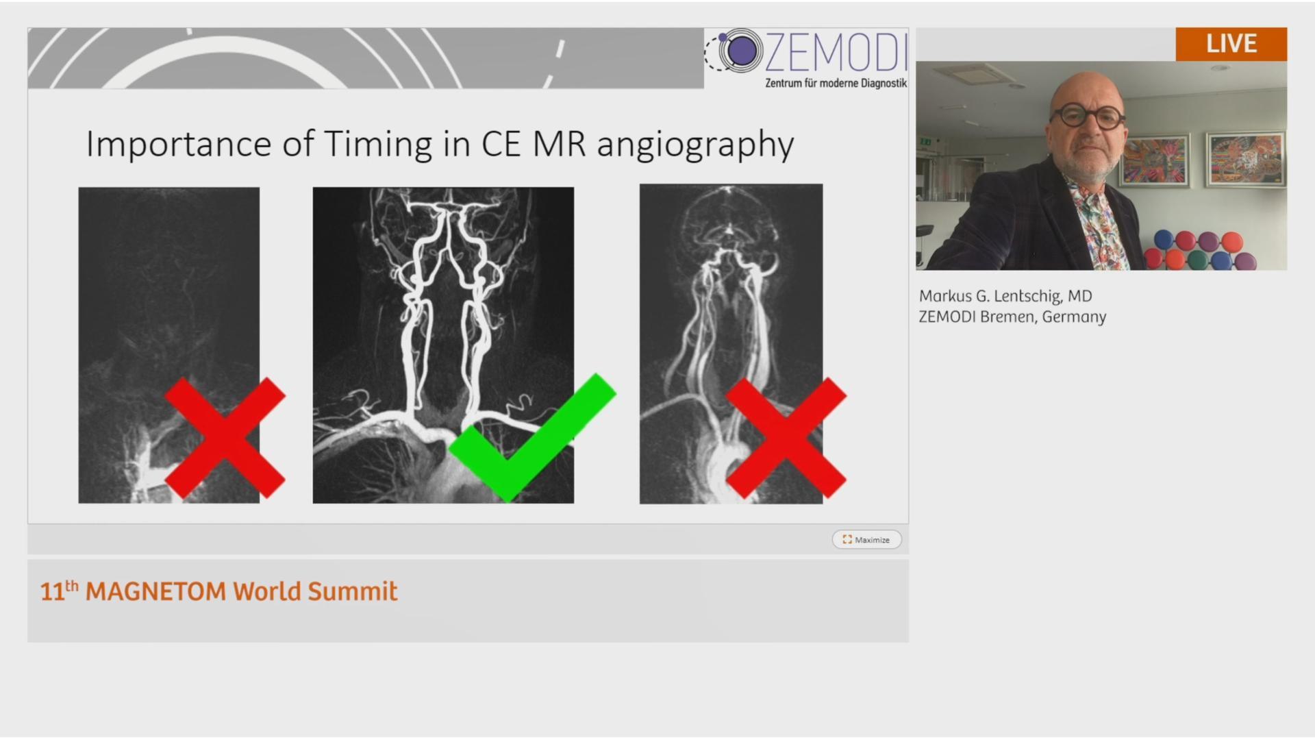 Preview Clinical Talk Markus Lentschig