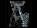 SPECT/CT in orthopedics