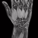 Hand/Wrist 16
