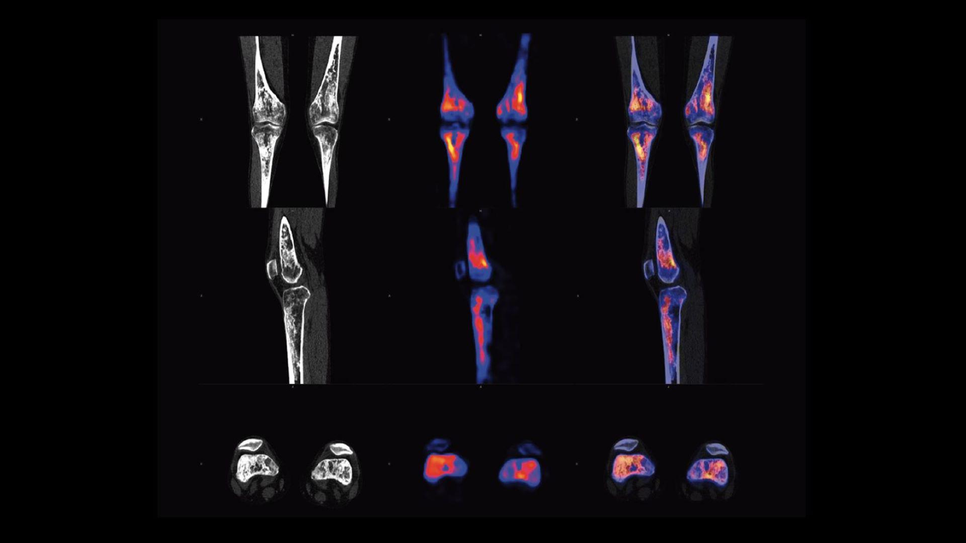 xSPECT Bone of knees shows punctate sclerosis in femur & tibia marrow corresponding to osteolysis in sclerotic foci