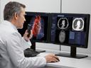 Siemens Healthineers - syngo.via - Advanced Visualization