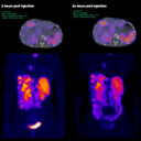 111In in SPECT/CT Quantification