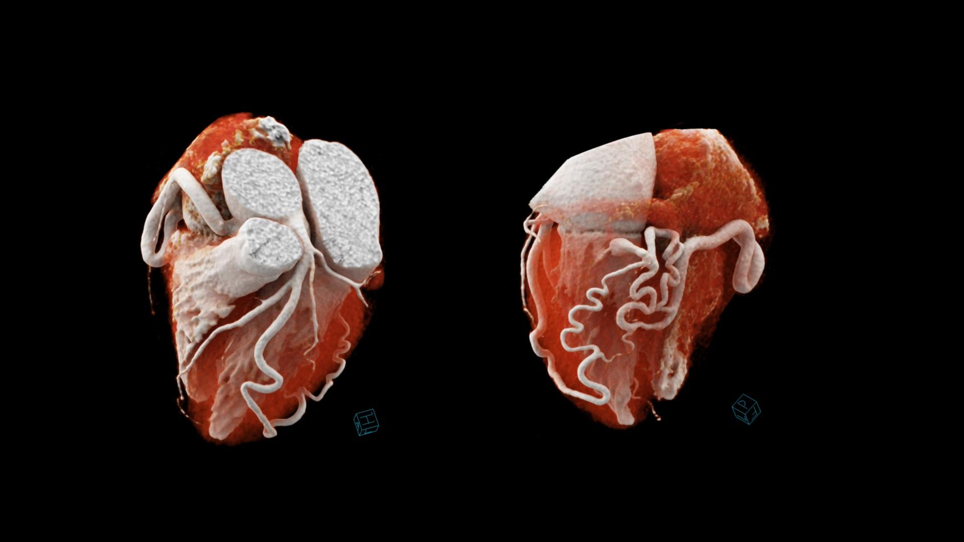 cVRT images show the torturous trajectory of the dilated RCA and D1, connecting distally, and a single fistula draining into the LV chamber.