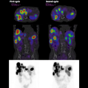 177Lu SPECT/CT quantification to assist theranostic procedures