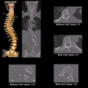 Automated Spine Reconstruction