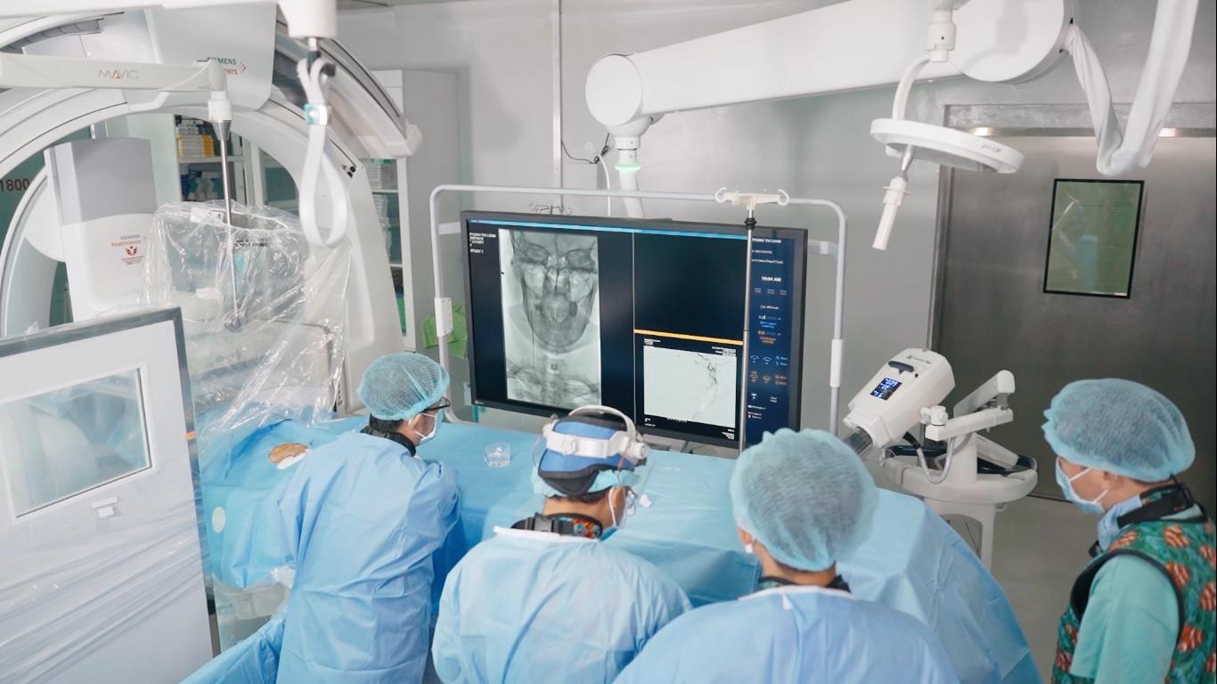 Managing stroke using minimally invasive procedure