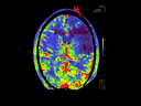 Interventional Radiology - Neuro Interventions