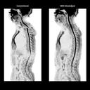 Siemens Healthineers Biomatrix MRI SliceAdjust spine
