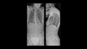 Examination of congenital scoliosis in natural weight-bearing position
