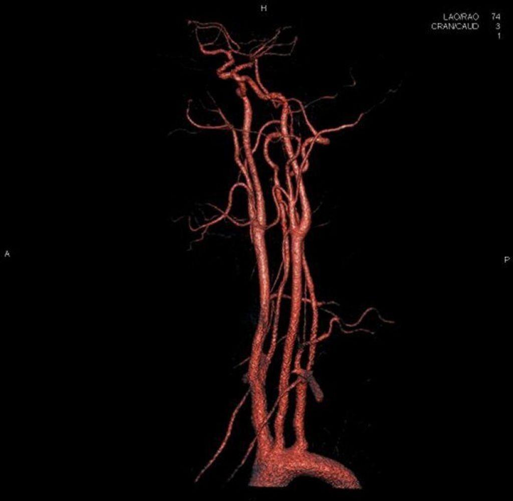 syngo Neuro DSA CT