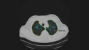 AI-Rad Companion Lungs