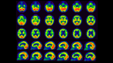 Cerebral perfusion SPECT images show age-reltred atrophy in a patient with suspected Alzheimer's disease.